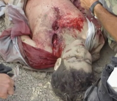 Omar Khadr's wounds from being shot in the back by US soldier