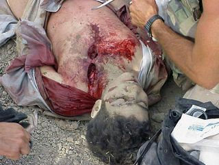 15   Omar wounded.